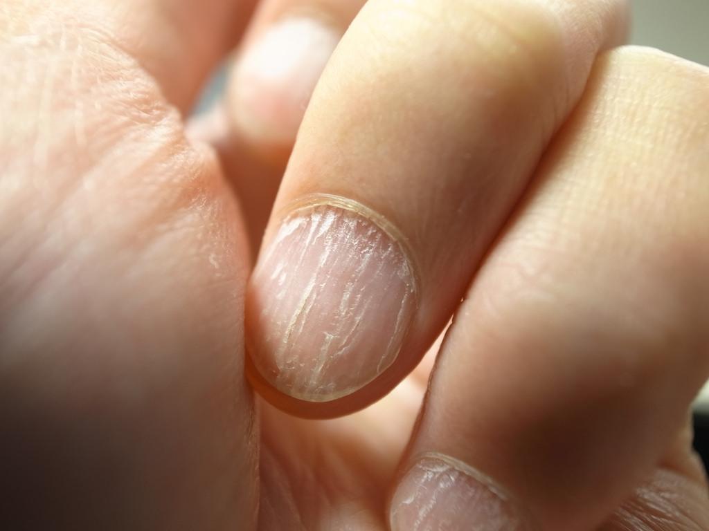 Unghiile casante – un simptom neobişnuit al menopauzei