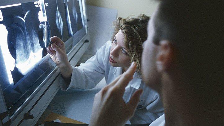 Exista risc mai mare de cancer la menopauza?