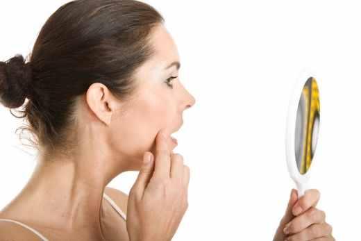 Parul facial la menopauza